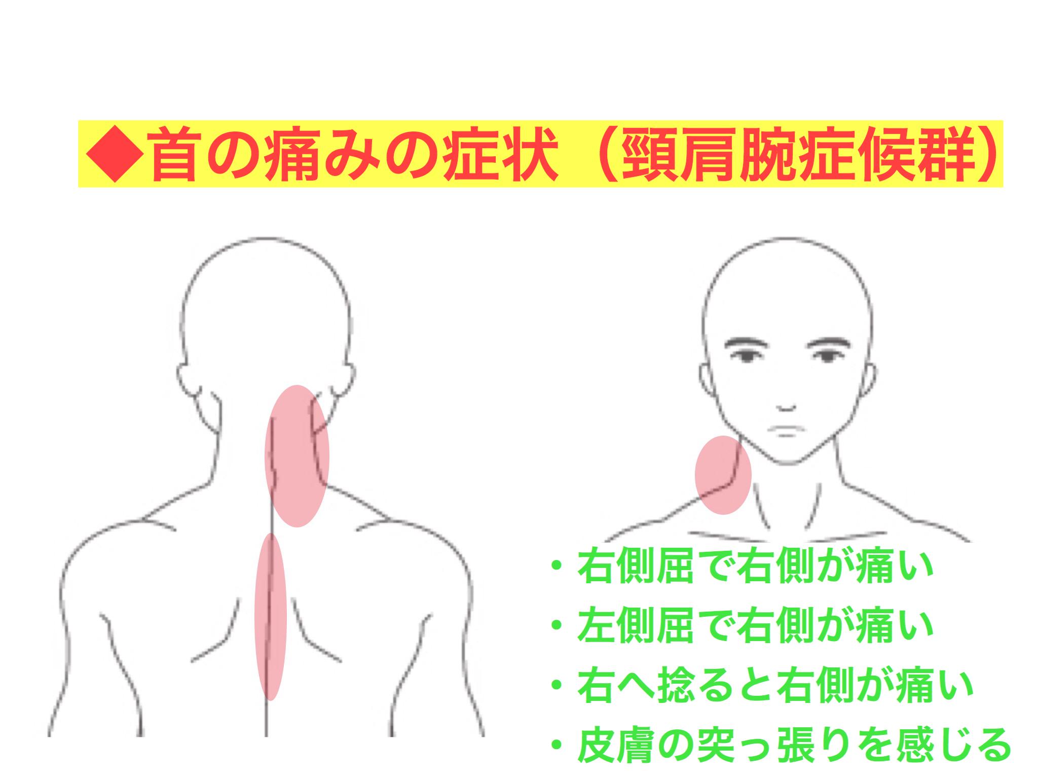 耳 の 後ろ が 痛い