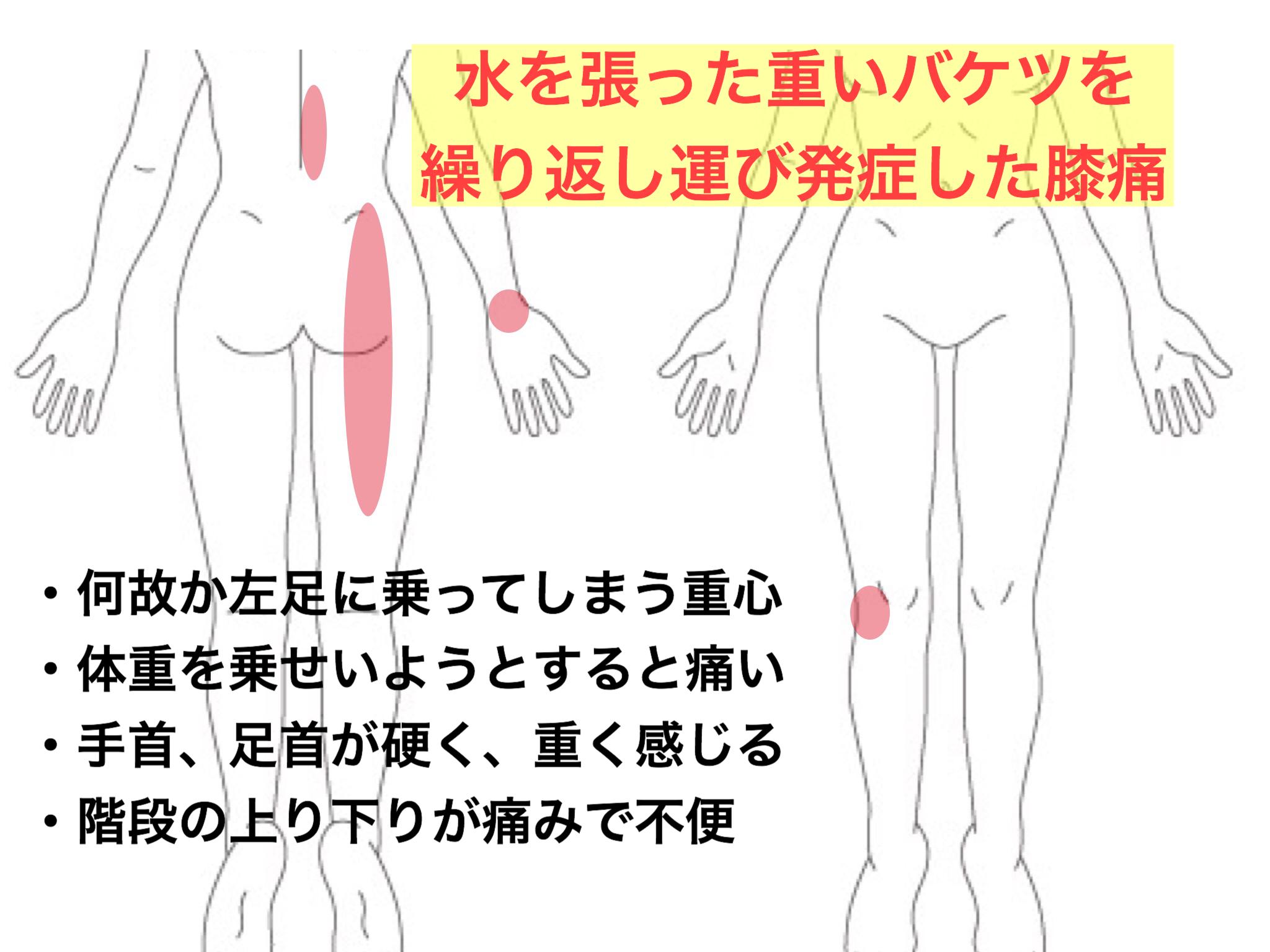 バケツを繰り返し運び発症した膝痛