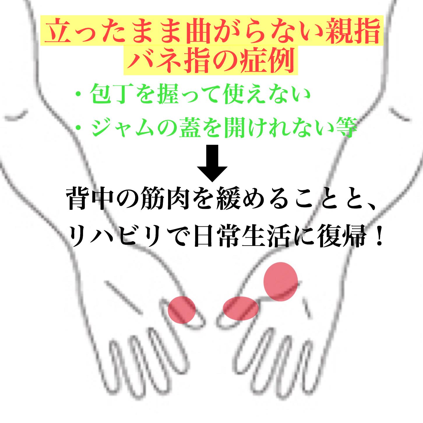 ばね 指 親指