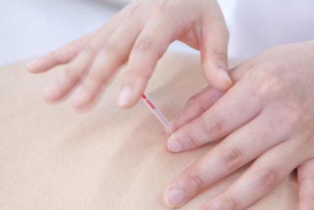 生理痛には鍼施術(はり)